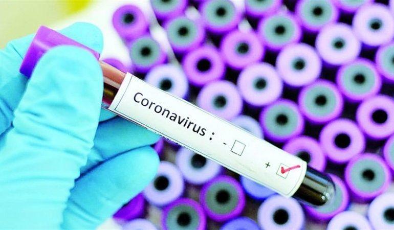 В Запорожье депутаты выделили 100 миллионов гривен на борьбу с коронавирусом