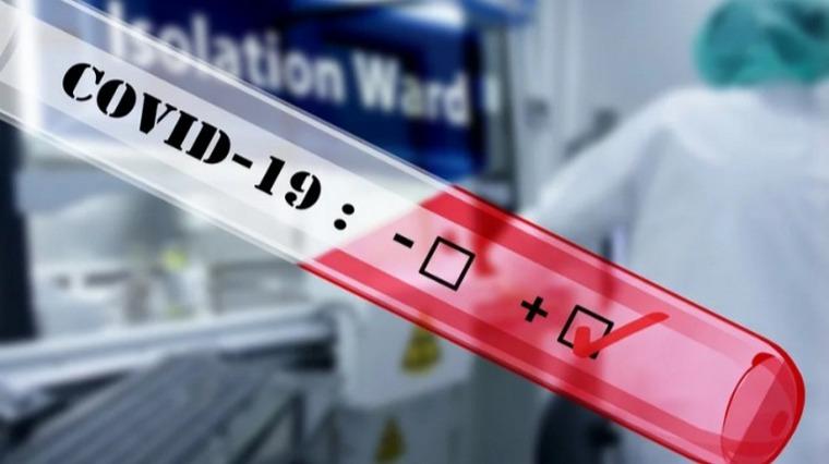 В Запорізькій області - 13 нових лабораторно підтверджених випадків захворювання на COVID-19