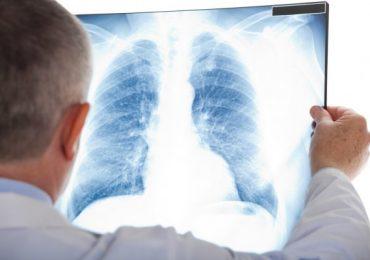 Запорожский пульмонолог рассказала, как восстановиться после пневмонии